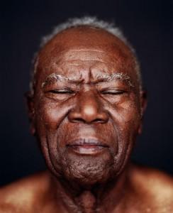 Facial_wrinkles