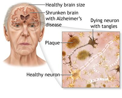 diagram of Alzheimer's Disease